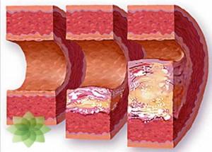 Роль холестерина при гипертонии
